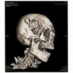 Aflevering 75 – LIVE – de pannenkoekenmoord